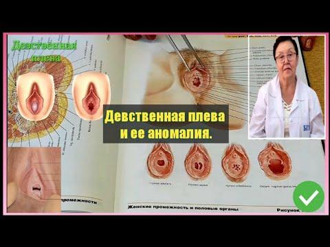 Девственная плева и ее аномалия (hymen).