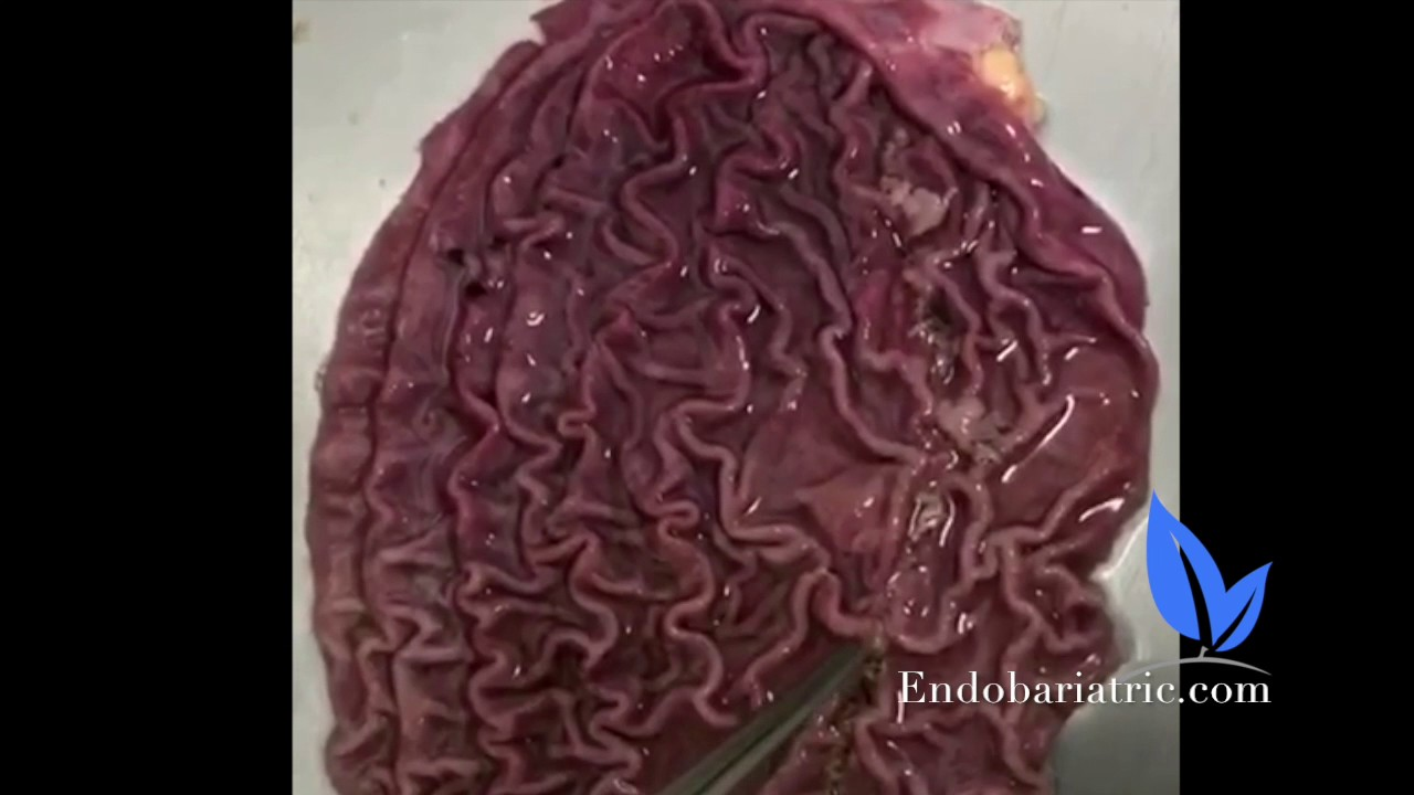 What The Inside Of A Stomach Looks Like