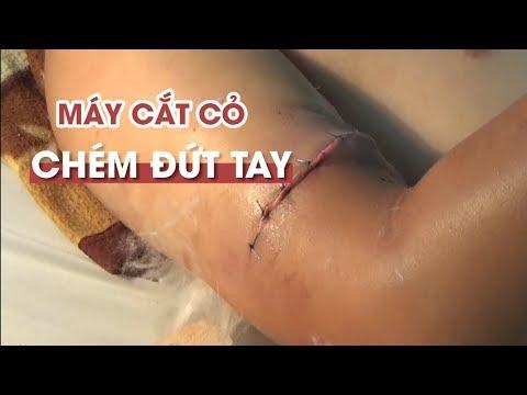 Báo ĐS&PL: Bệnh nhân ở Cà Mau gãy đốt sống ngực, bệnh viện phẫu thuật nhầm cẳng chân