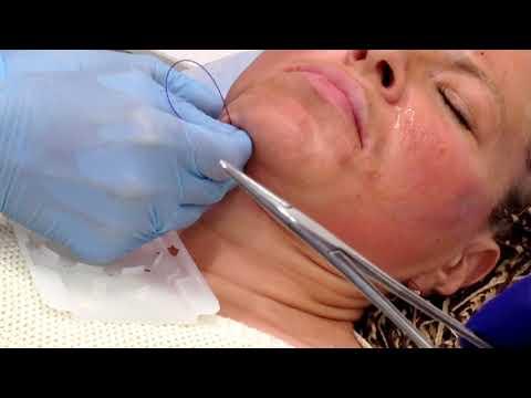 Практика студентки: Применение нитей АПТОС для подтяжки кожи в области ПОДБОРОДКА.