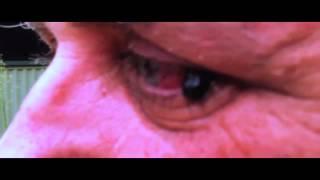 Leech in Eye - Leech Removal from the Eyeball