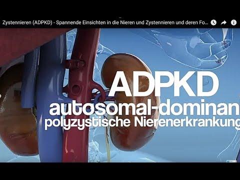 Zystennieren im Blick - Kurzvideo erklärt häufige Erbkrankheit ADPKD