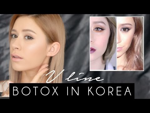 V LINE SURGERY | BOTOX IN KOREA My experience