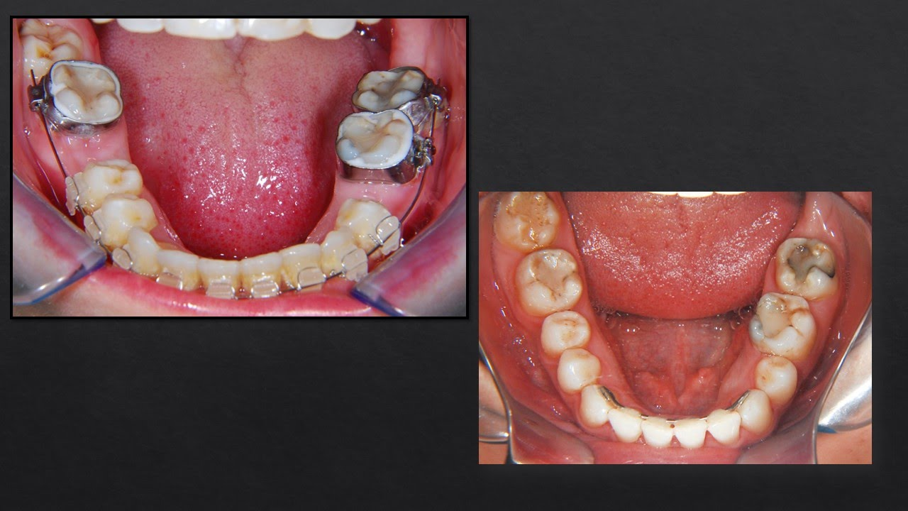 Closing Lower Spaces: Orthodontics!! - YouTube