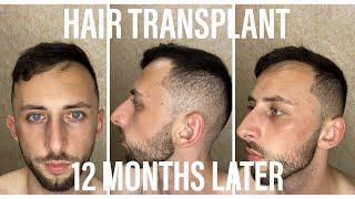 12 МЕСЯЦЕВ ПОСЛЕ ПЕРЕСАДКИ ВОЛОС В ТУРЦИИ Пересадка волос FUE Hair Transplant ПОЛНЫЙ РЕЗУЛЬТАТ
