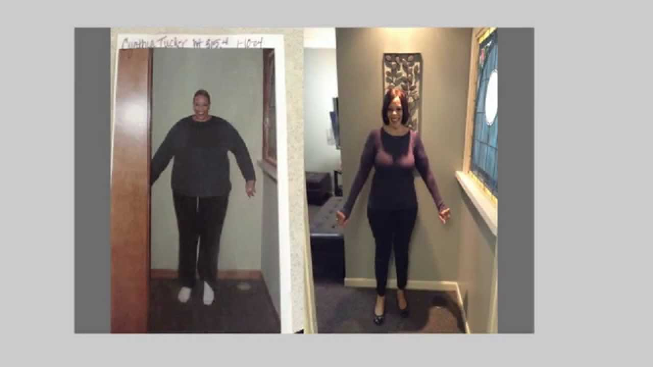 Lose weight after stopping mini pill
