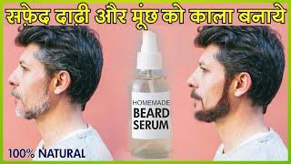 सफेद दाढ़ी व मूँछ को काला करने के सबसे असरदार उपाय - How to Get rid of White / Grey Beard Naturally
