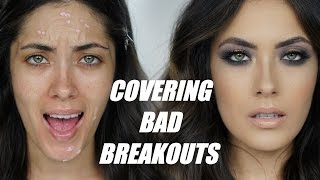 Video How to Cover Textured Breakouts | Melissa Alatorre download MP3, MP4, WEBM, AVI, FLV April 2018