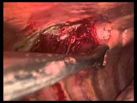 VATS pleural biopsy and pleurodesis- Biospia pleural y ...