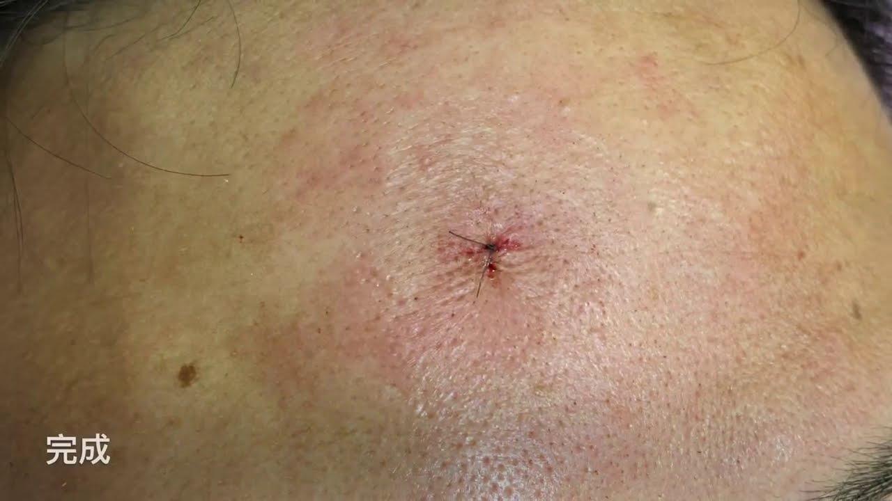 微創額頭脂肪瘤切除 美麗新城診所莊禮謙醫師 Lipoma, Forehead, Minimal Incision, Dr George