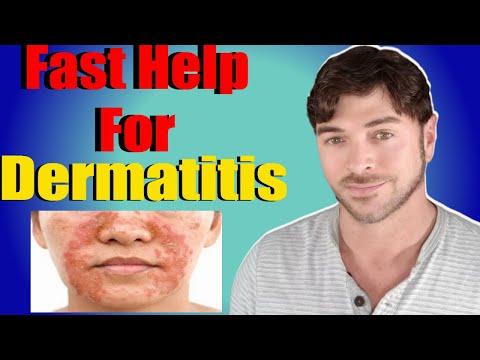 Fast Help For Seborrheic Dermatitis | Face And Scalp | Chris Gibson
