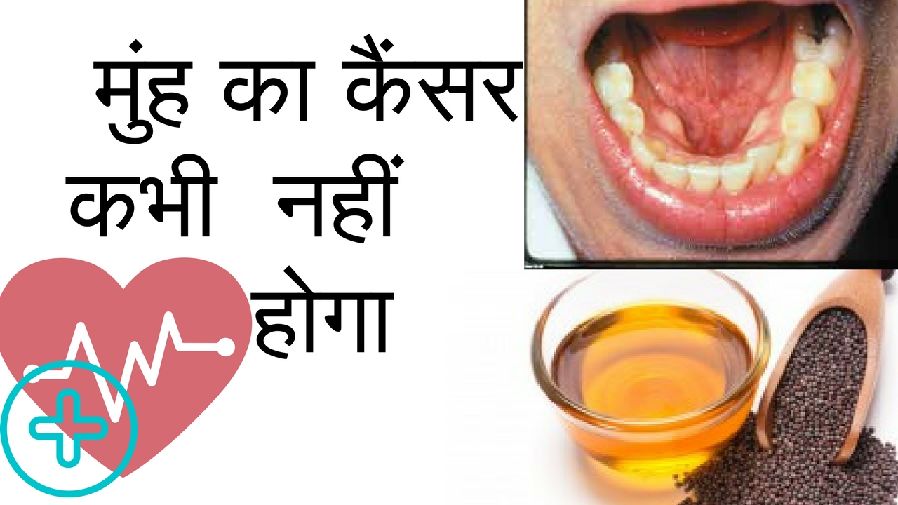 foto What is throat cancer in hindi