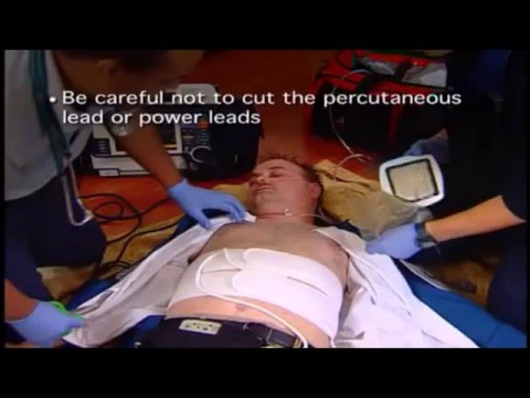 CPR (Chest Compressions) in LVAD