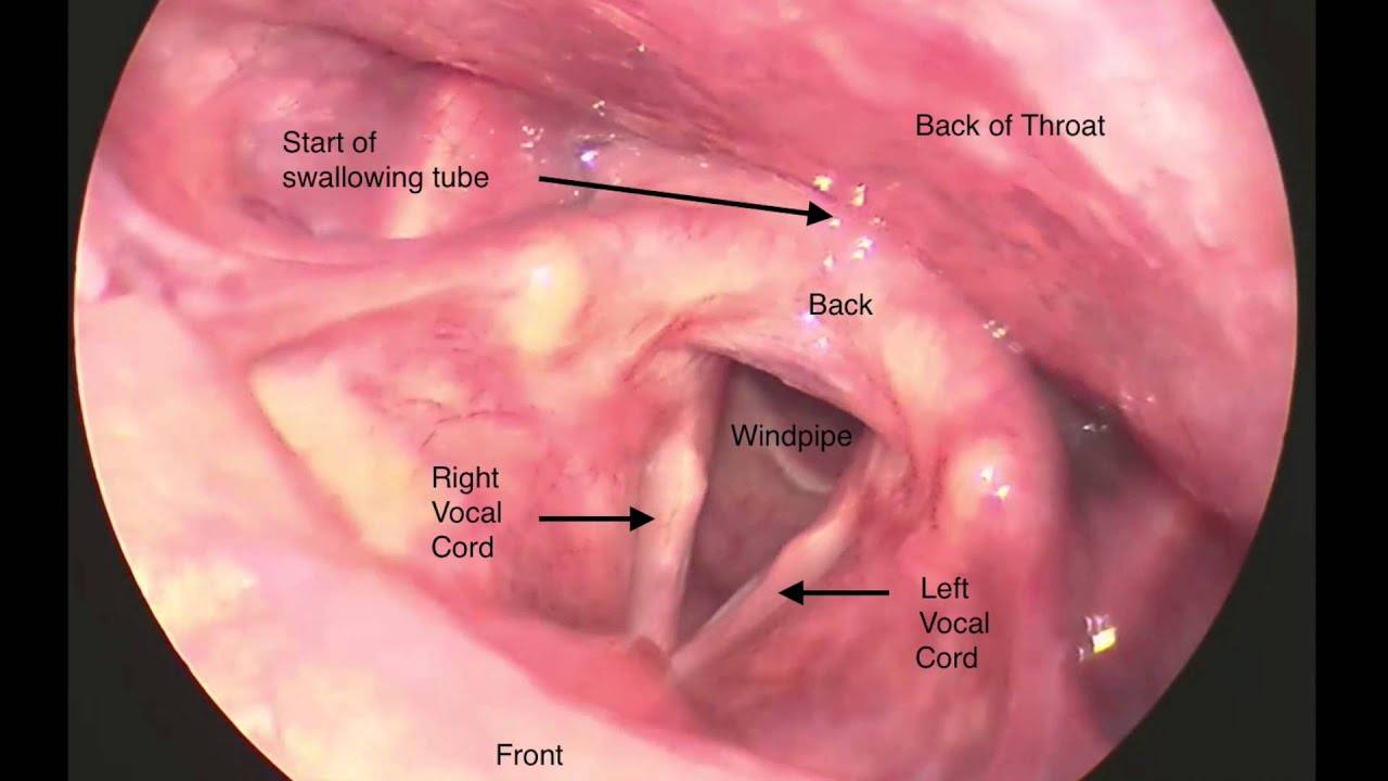 laryngoscopy. laryngoscopy of the vocal folds p
