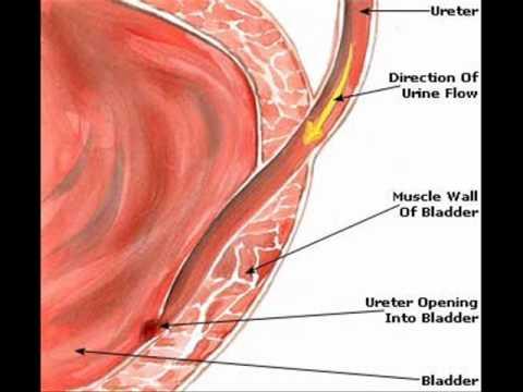 Uran infection