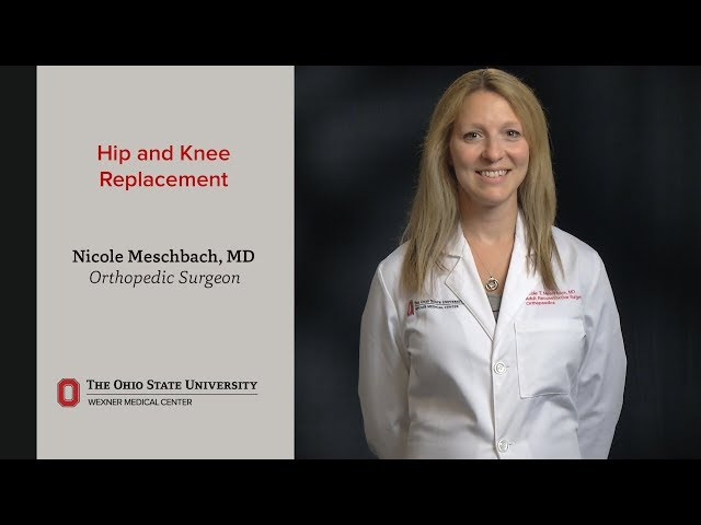 Orthopedic Surgery - Joint Replacement | Ohio State Medical
