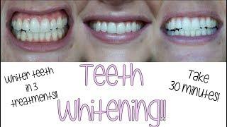 Baixar HOW I WHITEN MY TEETH!