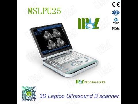 3D USG & PC Based 3D Laptop Ultrasound B Scanner MSLPU25