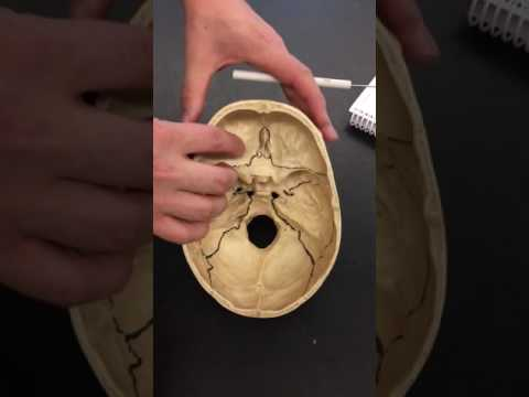 Anatomy I Episode 5: Skull (Cranial bones and their Sutures) - TEACHER T