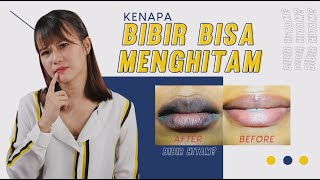 Inilah Alasan Kenapa Bibir Bisa Menghitam ! Kebiasaan Yang Kamu Gak Sadari Bikin Bibir Hitam