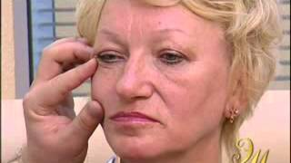 Пластика лица (фейслифтинг) Мамедов Э.В.
