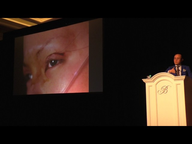 Asian Blepharoplasty & Aging Asian Eyelid Lecture by Dr. Sam Lam in Las Vegas