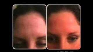 Skin Vitamins Part 2