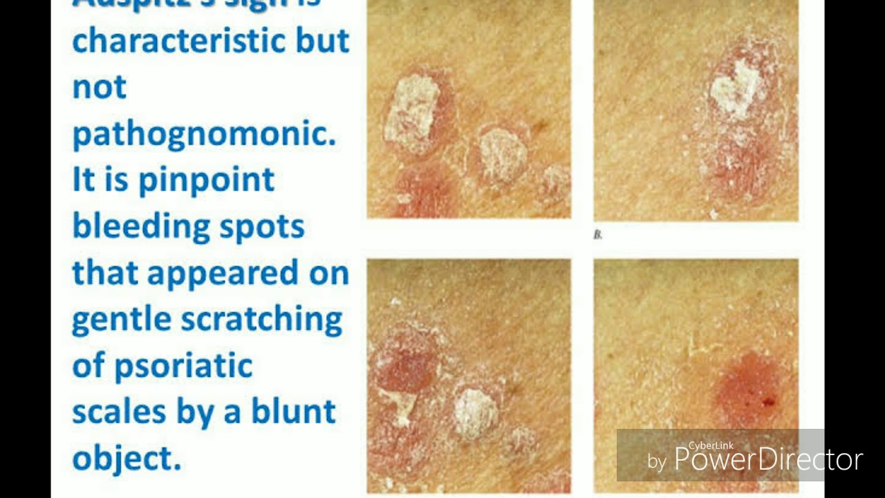 psoriasis scales picture)