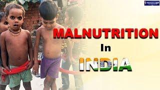 DNS : MALNUTRITION IN INDIA