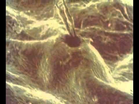 Эпидермис под микроскопом. Регенерация эпидерсиса.avi