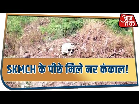 Fearful news from Muzaffarpur, many male skeletons found in forests behind SKMCH!