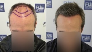 fue hair transplant 3310 grafts in nw class v by dr juan couto fuexpert clinic