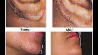 إليكم هذه الحيلة الطبيعية والتي ستخلصك من شعر الوجه الزائد هذا هو الحل النهائي أخيراً !