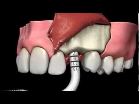 Célèbre Implant dentaire : La méthode la plus moderne pour remplacer les  XL93