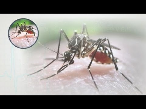 Human trials begin for Zika vaccine