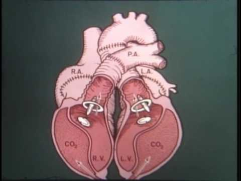 State of the Heart - A History of Artificial Heart Development