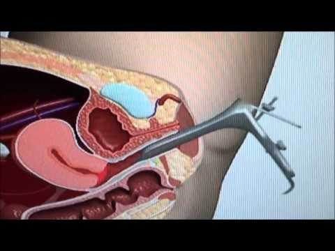 Pap Test  - Procedure