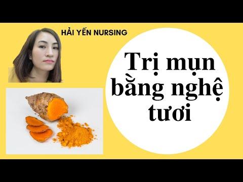 Trị MỤN bằng nghệ tươi/Cách trị mụn TRỨNG CÁ bằng nghệ tươi/Hải Yến Nursing
