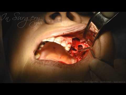 Dental Cyst Surgery (Enucleation of Radicular Cyst) - Remoção de ...