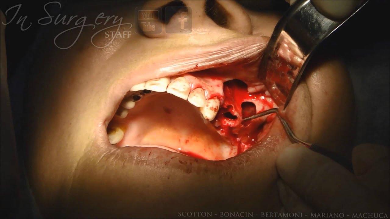 dental cyst