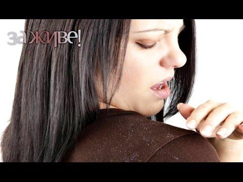 Как избавиться от перхоти и зуда головы: 10 советов