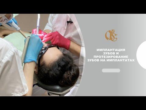 Имплантация зубов и протезирование зубов на имплантатах в Гильдии стоматологов, Санкт-Петербург