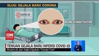 Temuan Gejala Baru Infeksi Covid-19
