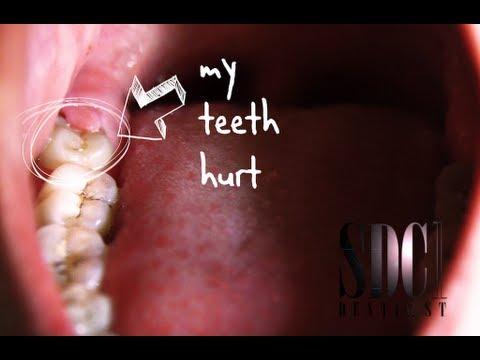 ฟันคุดคืออะไร ฟันคุดผ่าไหม (wisdom teeth)