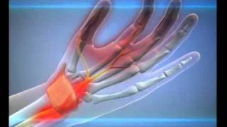Туннельный синдром(У вас после сна немеют пальцы руки? Скорее всего, это туннельный синдром. Что такое туннельный синдром,..., 2010-08-24T09:38:58.000Z)