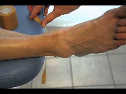 NOS-physio tape talus - YouTube