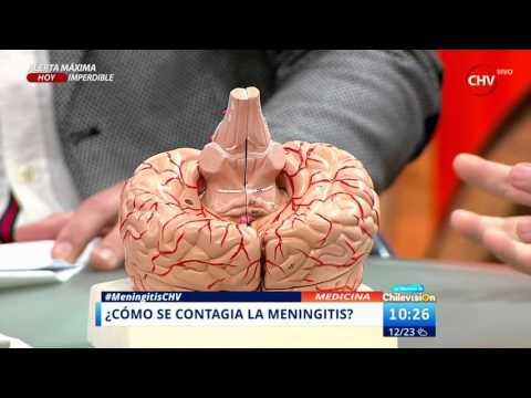 Todo lo que debe saber sobre la meningitis: síntomas, cómo se contagia y causas