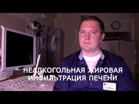 """Жировой гепатоз - чем опасна """"жирная"""" печень!"""