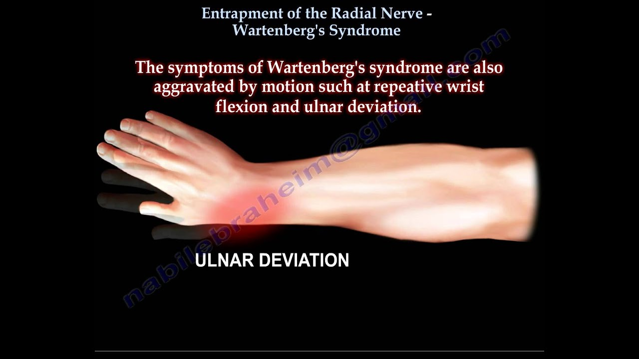 Entrapment of Radial Nerve, Wartenberg\'s Syndrome - Everything You ...