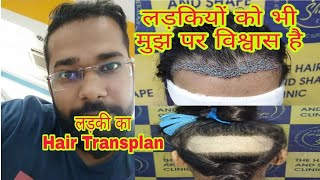 Girl Hair Transplant In Mumbai India    Best Hair Transplant Result of Female 2018